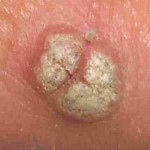 wart-treatment